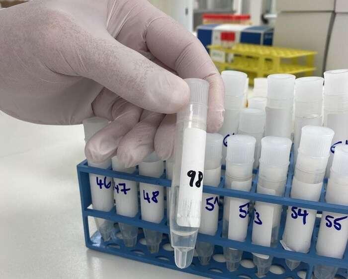 Vzorky zPCR poolování několika brněnských soukromých škol vtamější Fakultní nemocnici usv. Anny. Odebírají seneinvazivně, pomocí asi minutového žvýkání sterilního tamponu. Tyse popoužití vloží dozkumavky, testují sepo deseti naráz. Foto FBFNUSA
